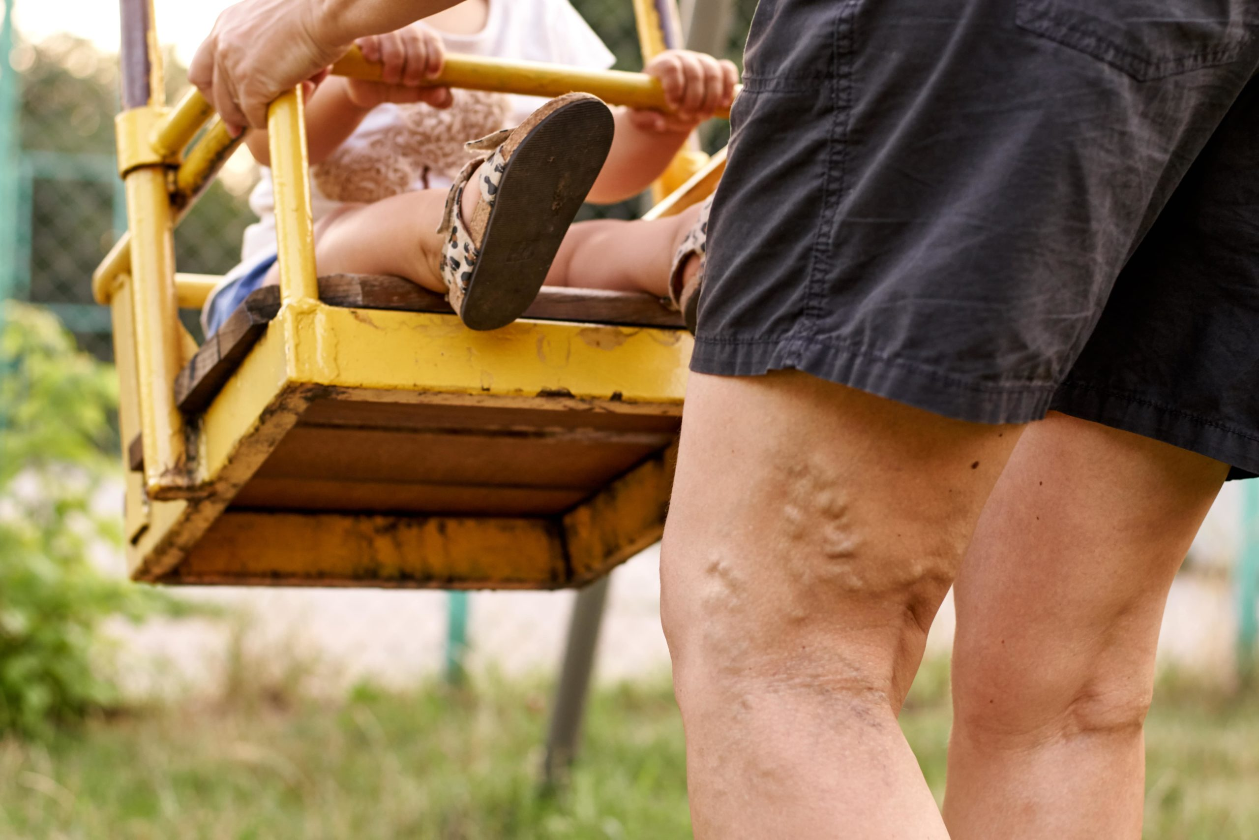 What are Varicose Veins & What Causes Them?
