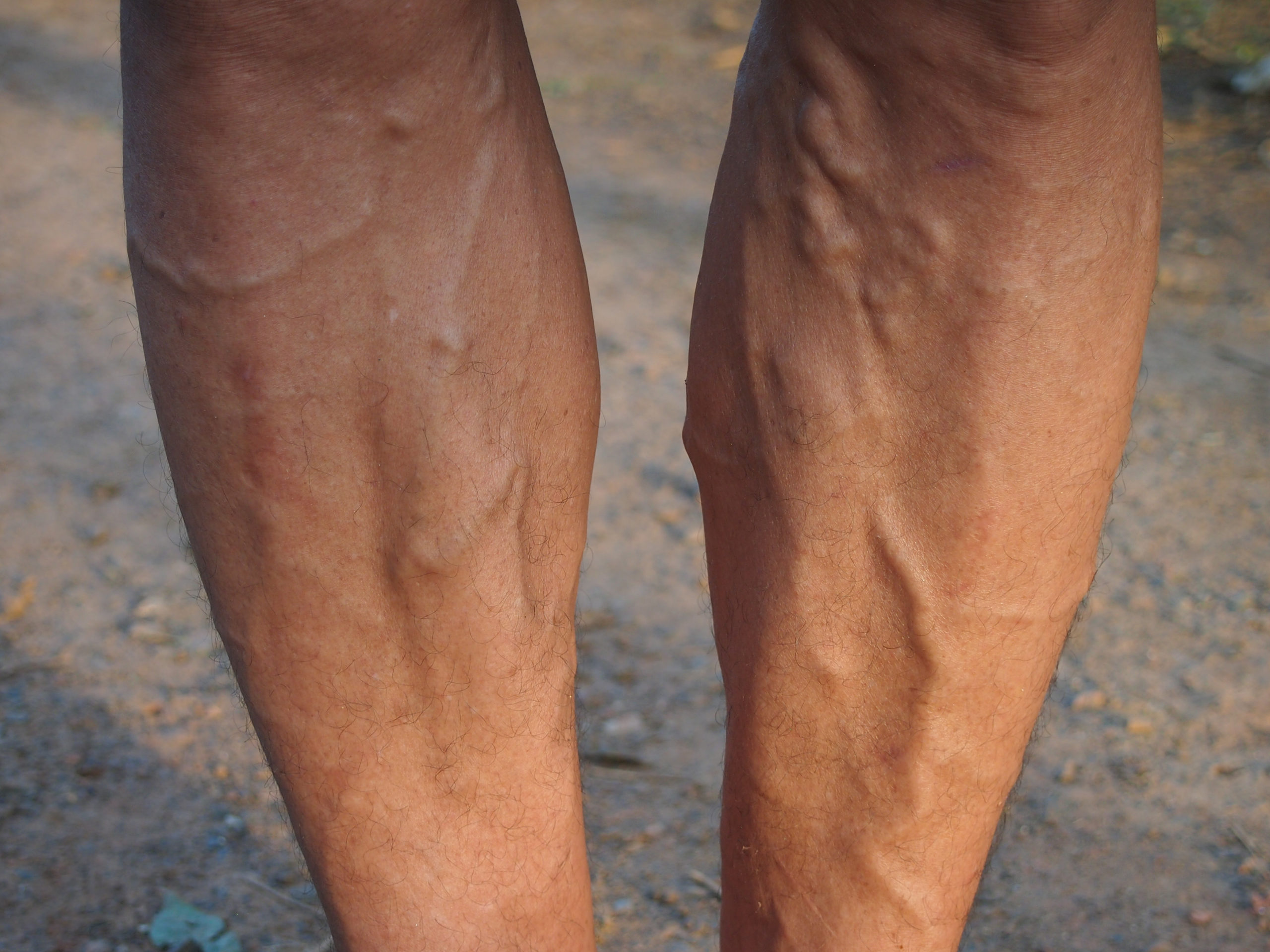 Tips for Men with Varicose Veins