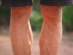 Vanexxe Varicose Vein Treatment